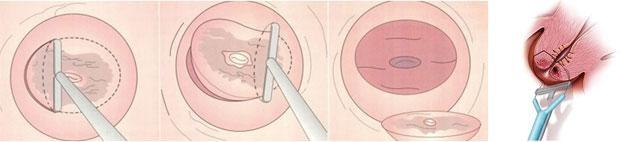 宫颈糜烂的症状,如果出现可要小心了(2)